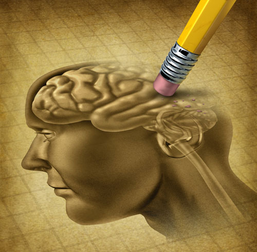 dementia brain web